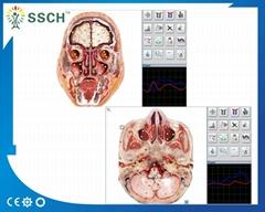 塔特隆獵人NLS系統卓瑪4025*生物共振健康掃描和治療