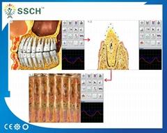 非線性檢測設備NLS系統獵人4025的完整健康人體分析儀