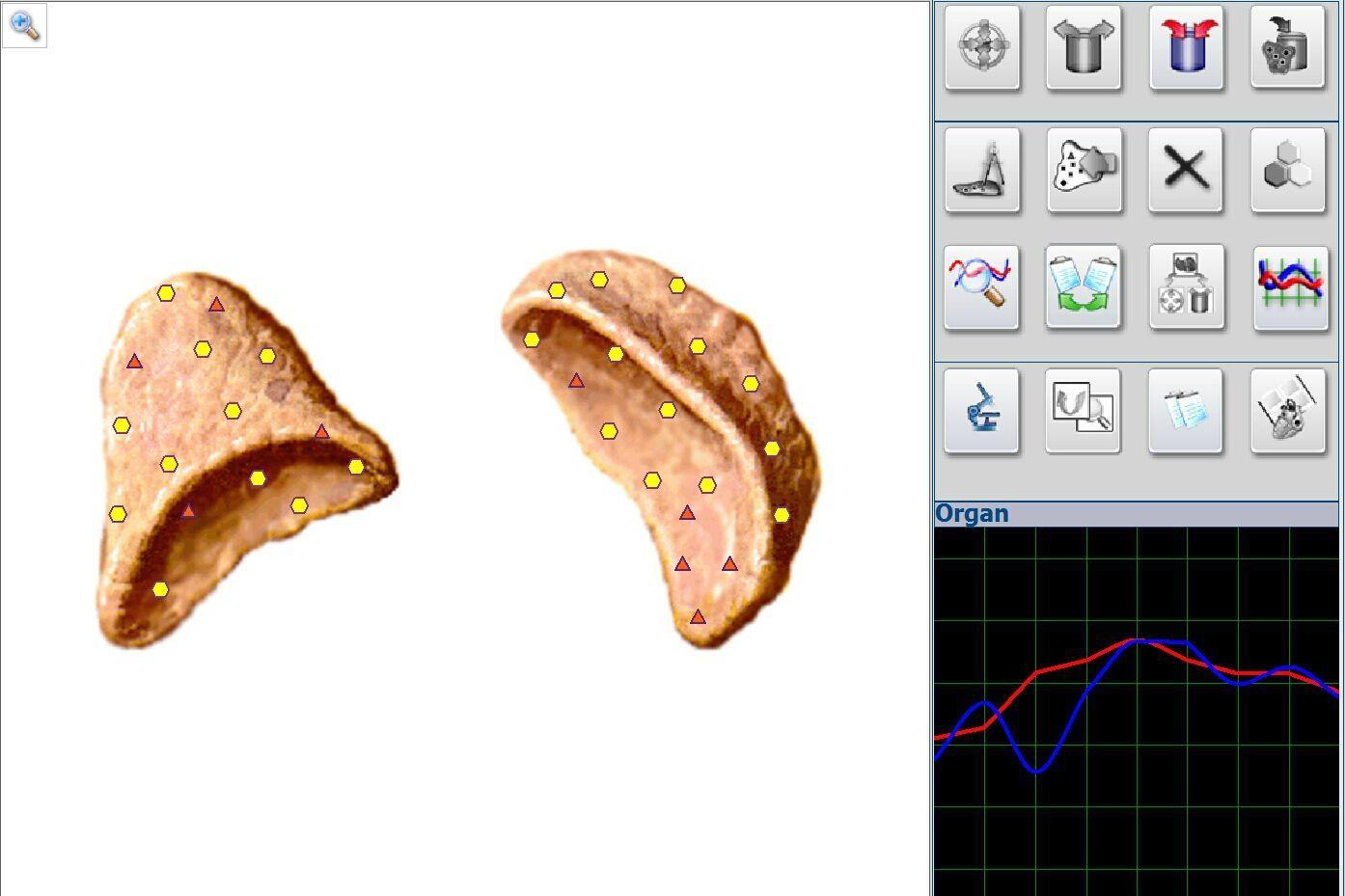 原生物共振4025猎人奥伯伦版非线性分析系统 1