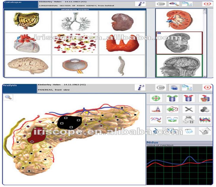 多語言高精度塔特隆NLS4025獵人身體分析儀 1