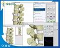 高精度NLS Metranon4025亨特临床医疗设备的智能自动全身健康设备 2