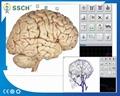 高精度NLS Metranon4025亨特临床医疗设备的智能自动全身健康设备 3