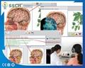 高精度NLS Metranon4025亨特临床医疗设备的智能自动全身健康设备 10