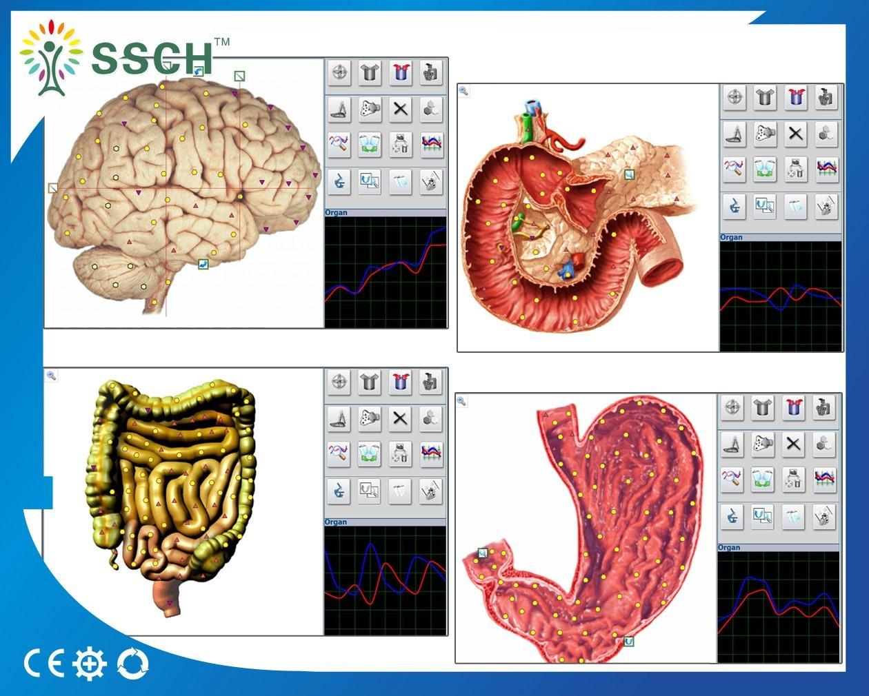 高精度NLS Metranon4025亨特临床医疗设备的智能自动全身健康设备 9