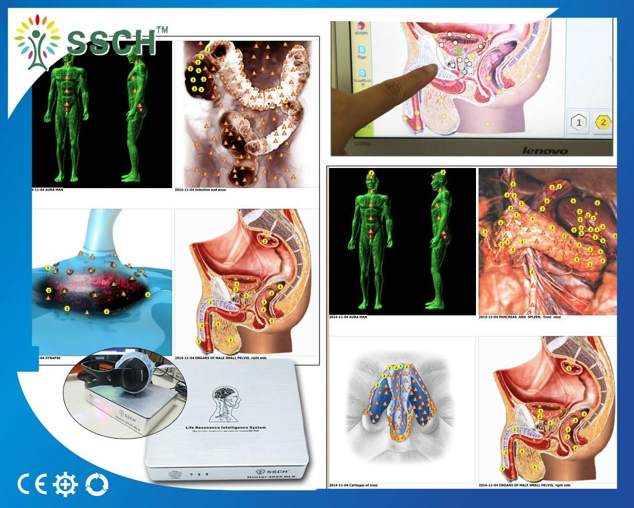 高精度NLS Metranon4025亨特临床医疗设备的智能自动全身健康设备 1
