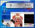 OEM/ OEM提供專業的新塔特隆獵人4025 NLS的身體健康分析儀設備 10
