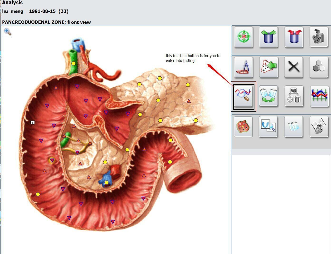 OEM/ OEM提供專業的新塔特隆獵人4025 NLS的身體健康分析儀設備 18