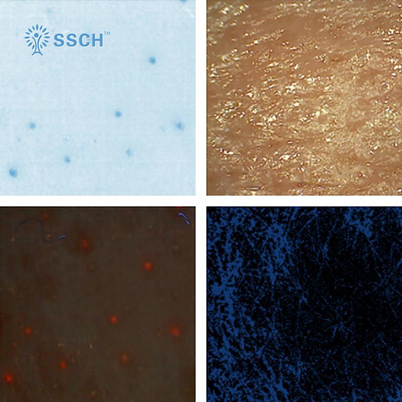 全新優質新產品專業無線數字視頻皮膚鏡,用於皮膚科醫生的皮膚分析 1