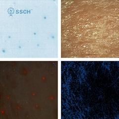 全新优质新产品专业无线数字视频皮肤镜,用于皮肤科医生的皮肤分析