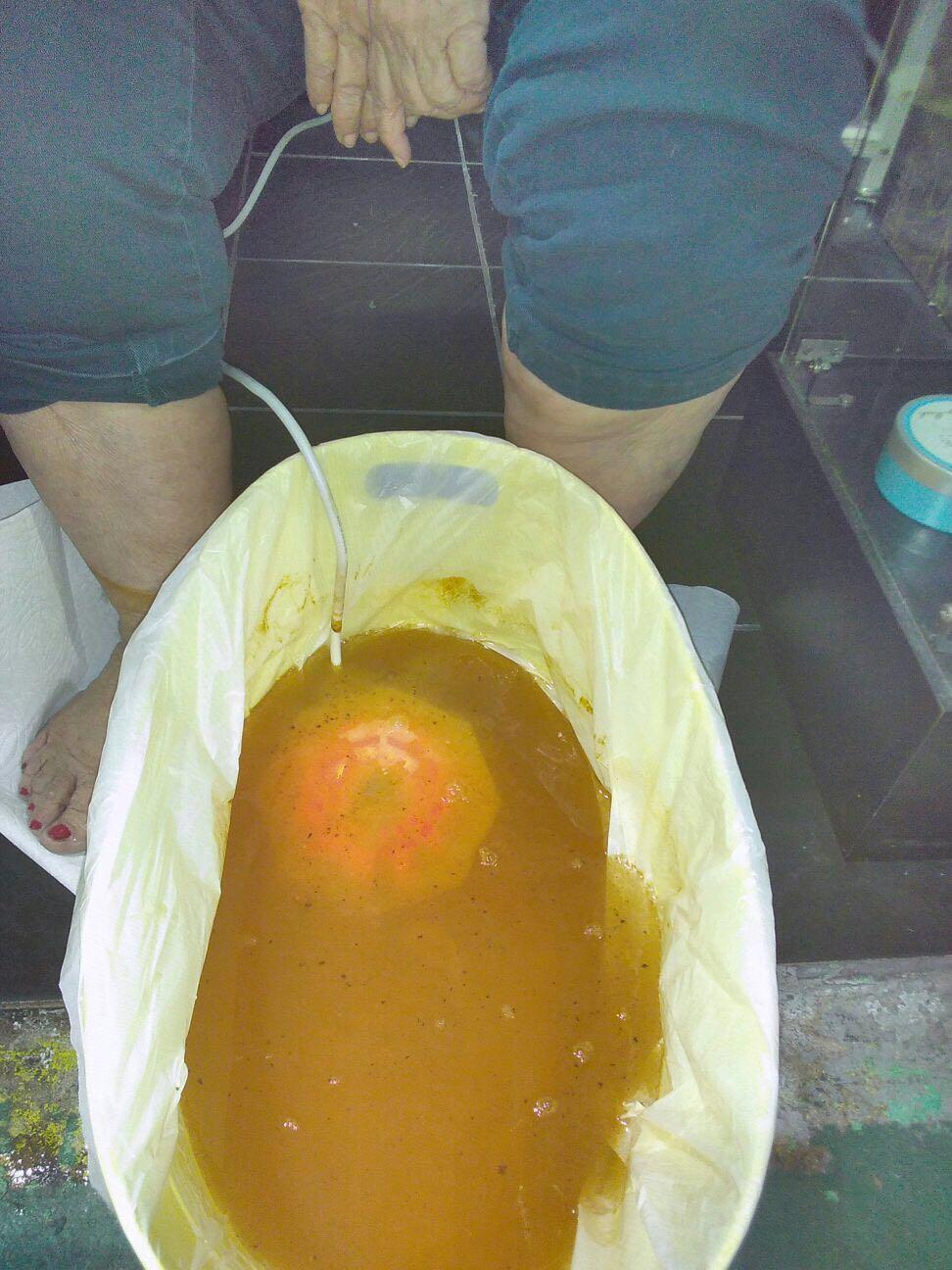 氫氣水療/足部排毒水療機用於沐浴和水療 2