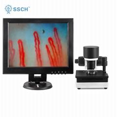 血管顯微鏡血液微循環測試分析儀