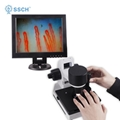 Portable video microscope capillary microcirculation microscope XW880