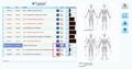 2019年SSCH生物反馈健康分析仪矢量V16 NLS光环脉轮机 4
