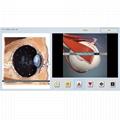 SSCH健康診斷機分析儀身體分析系統Vector V16 NLS 2