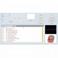 矢量v16 nls生物共振健康診斷分析儀更快更穩定 3
