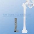 Dynamic Condylar Screw Plate (DCS)
