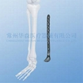Proximal Lateral Tibial LOC Plate