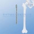 Proximal Lateral Femoral Plate