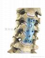 Anterior cervical plate I
