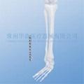 Distal Lateral Fibular Plate