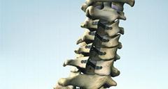 NEULEN 颈椎椎板成型系统