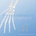 0.8mm 微型指骨板系列--骨科植入物、纯钛、创伤、Mini