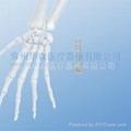 1.2mm 微型掌骨板系列