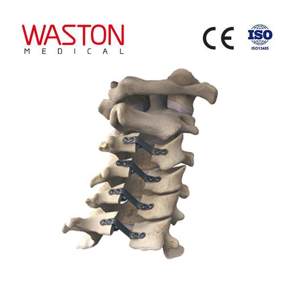 NEULEN cervical laminoplasty system--Orthopedic, Minimally invasive, Spinal