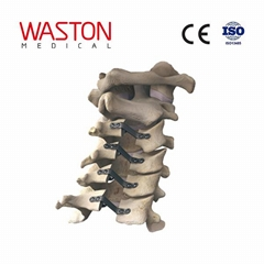 NEULEN cervical laminoplasty system--Orthopedic, Minimally invasive, Spinal