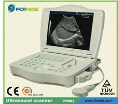 Laptop digital ultrasound scanner FN603