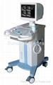 Full digital B ultrasound portable