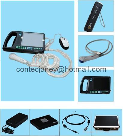 CMS600S 便攜式數字超聲掃描儀 1