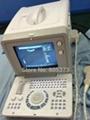 Portable Full Digital Ultrasound Scanner