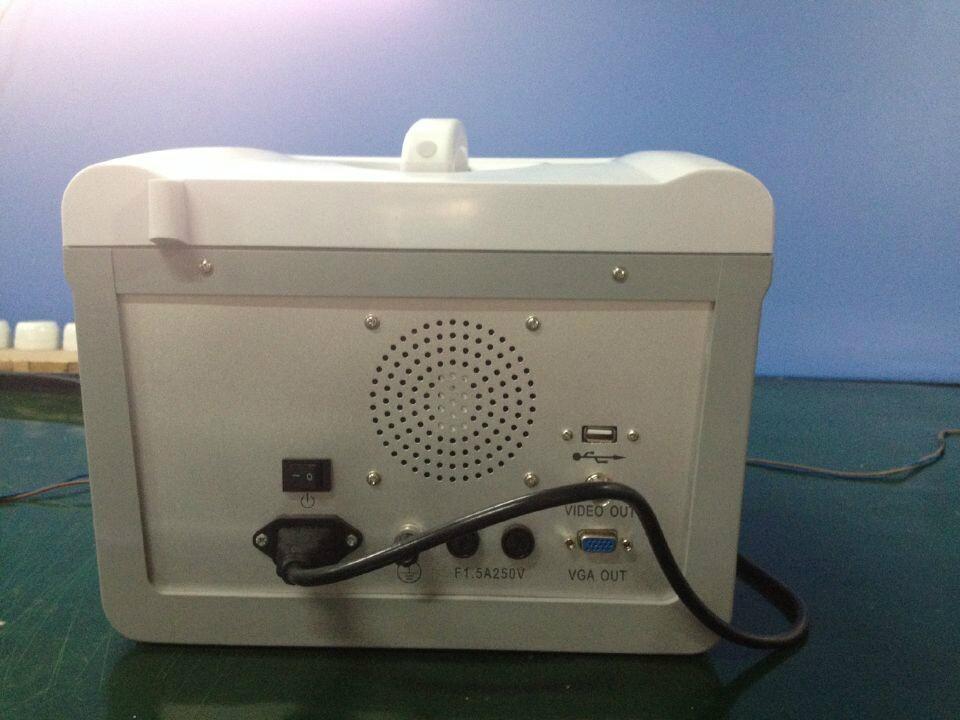 Portable Full Digital Ultrasound Scanner   9