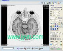 磁共振工作站软件