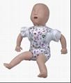 EM-019  高级婴儿气道阻