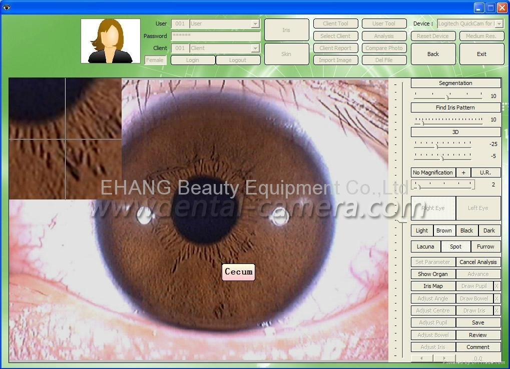 Iridology Pro image Analyzer diagnostic Software