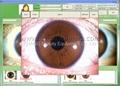 最新虹膜仪自动分析软件,自动生成检测报告