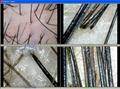 全新500萬像素USB電腦型毛髮,頭髮,毛囊,發質檢測儀 5