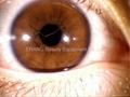 NEW 5.0 MP USB Eye Iriscope, Iridology camera+Pedal(EH-990U+P)