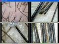 最新8寸高清CCD毛发检测仪/头发检测仪/毛囊检测仪一体机