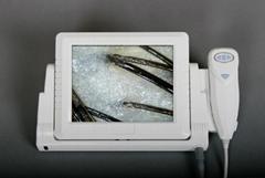 最新8寸高清CCD毛髮檢測儀/頭髮檢測儀/毛囊檢測儀一體機