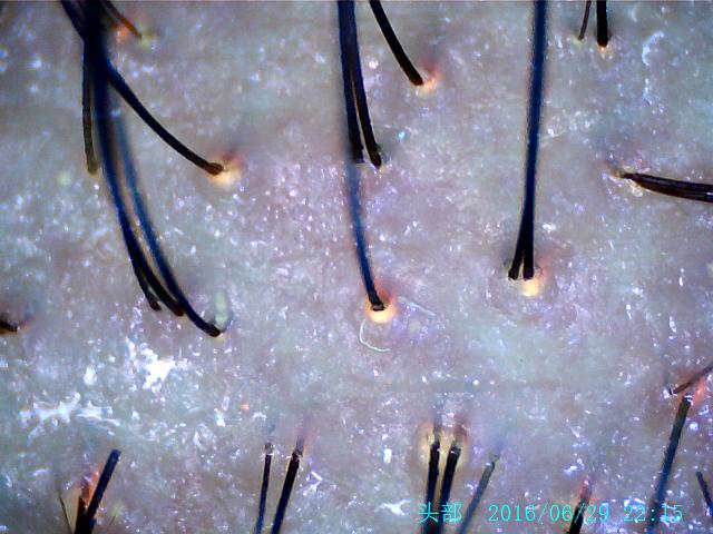 NEW 8.0 MP HD USB Hair Scalp Scope Hair Diagnosis Analyzer Camera( UV Lens) 2