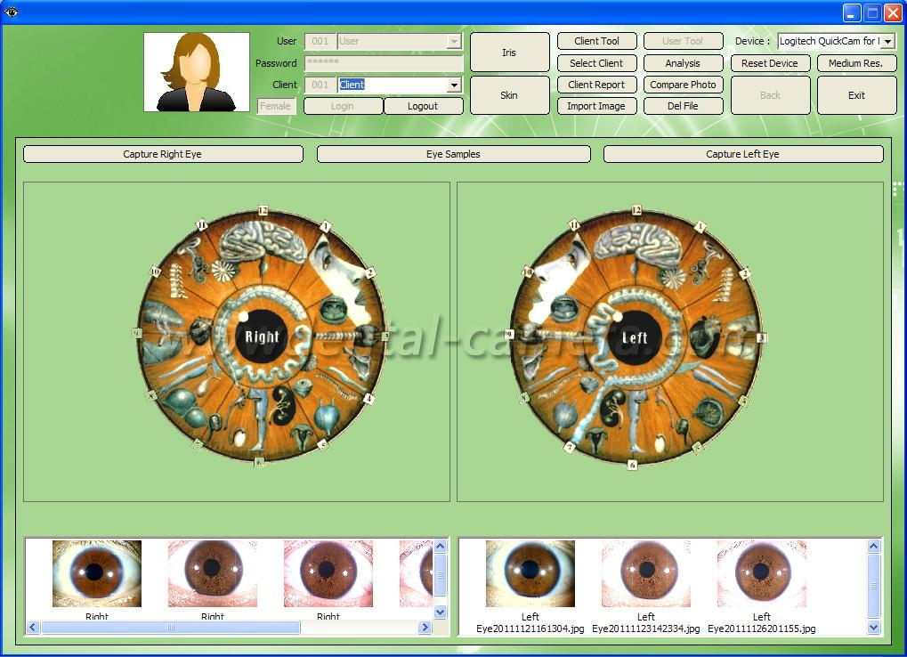 全新500万像素USB电脑型左/右灯自动分析虹膜检测仪 12