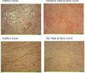 2017最新多功能UV皮膚檢測儀,皮膚測試儀,膚質檢測儀,皮膜檢測儀 2