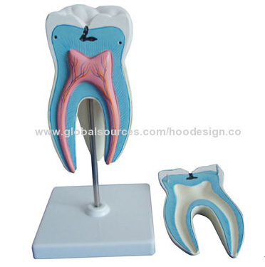 P-1385 Anatomical model of molar tooth with caries