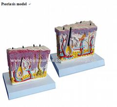 P-1310 Psoriasis model