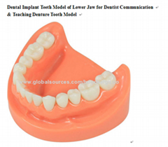 P-1347 Teaching Denture Tooth Model