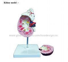 P-1161 Kidney model