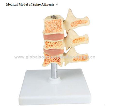 P-1303 Medical Model of Spine Ailments